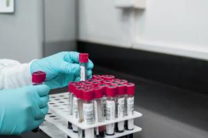 В Северной Осетии 7 новых случаев заболевания коронавирусом