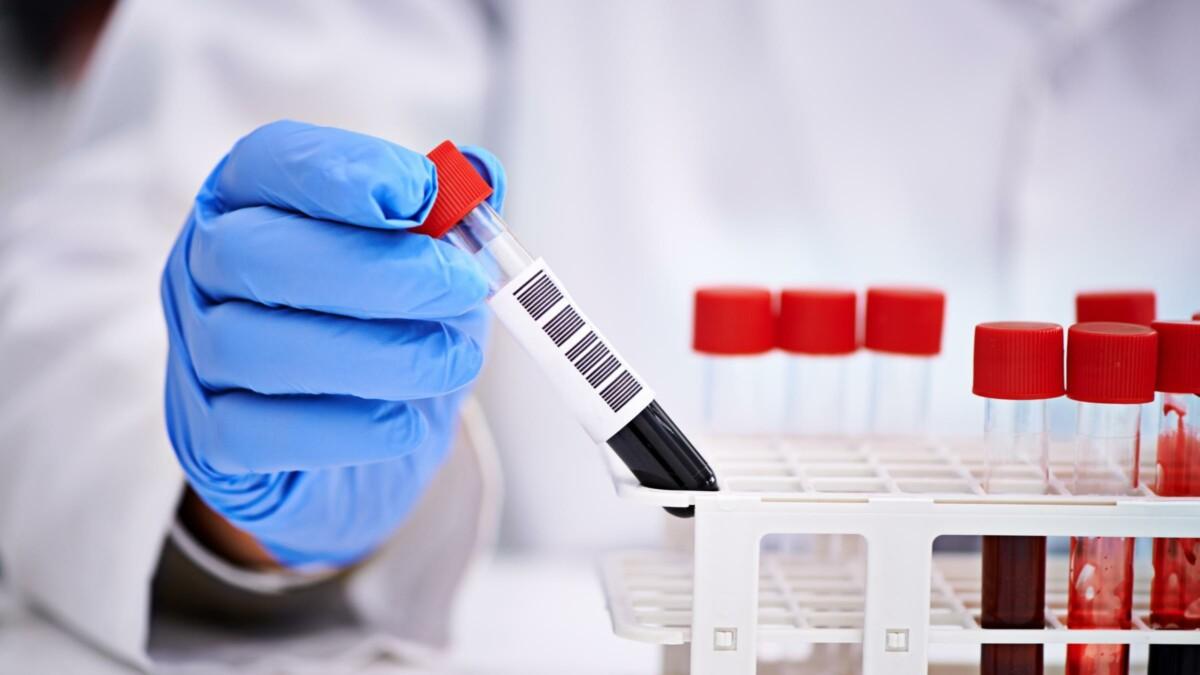 Результат анализа на коронавирус скончавшегося накануне пациента КБСП положительный — Роспотребнадзор