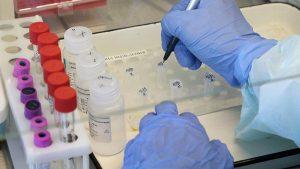 За сутки в Южной Осетии выявлено 5 случаев заразившихся COVID-19, общее количество — 30
