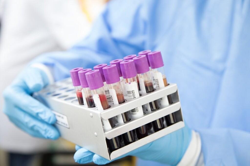 В Южной Осетии за сутки выявлено 114 случаев заражения коронавирусом