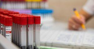 Общее число случаев заражения коронавирусом в Северной Осетии превысило 12 600 человек